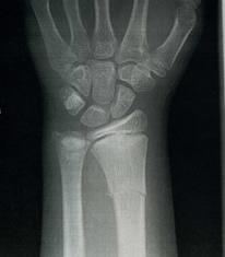 Dude X-Ray Broken Arm